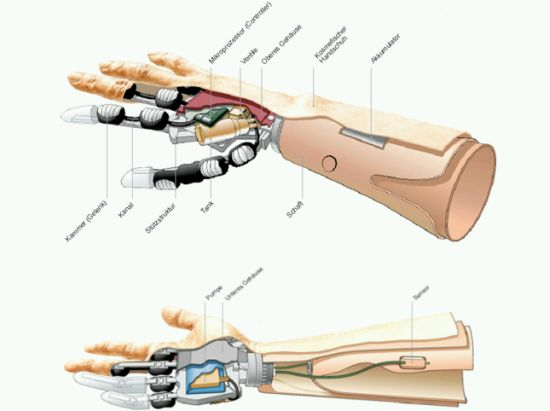 prothesis hand Custom-made finger, thumb, hand and toe prostheses restore form and function to patients who are missing anatomy due to illness, injury, or a birth difference.